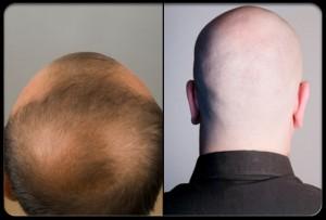 hair-loss-s3-two-bald-headed-guys